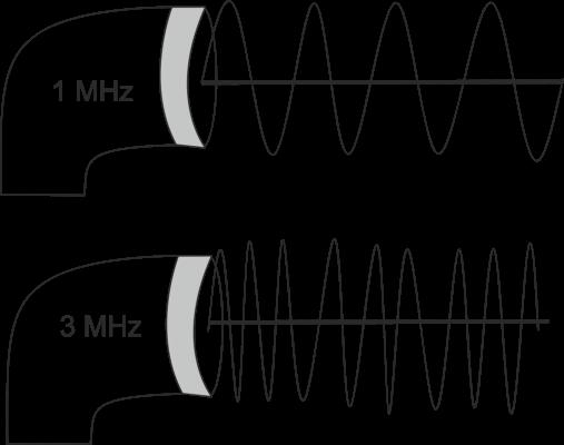 Échographie 1 MHz et 3 MHz